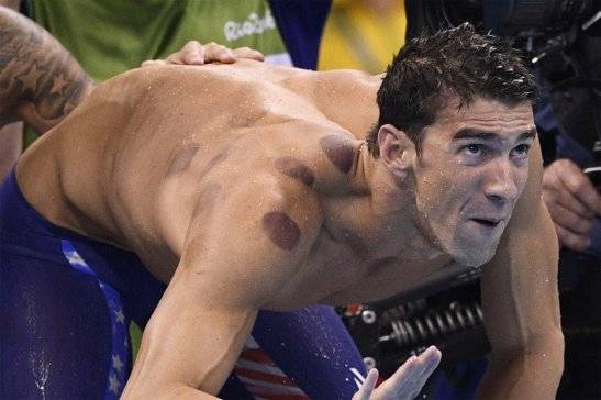 phelps-cupping-1200 (1)
